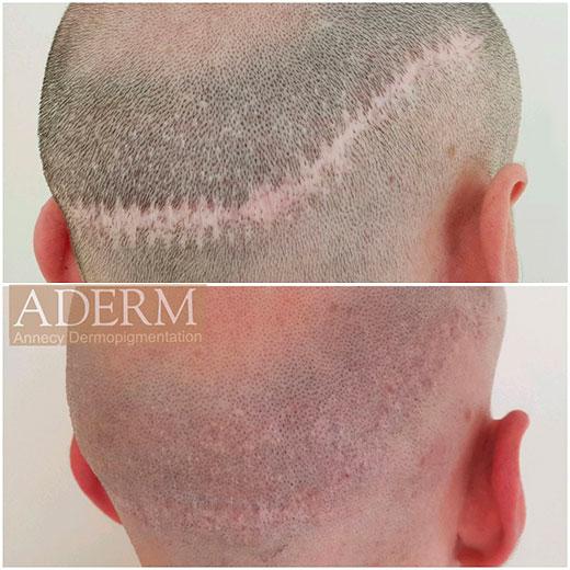 Centre Aderm- annecy : Tricopigmentation avant-après