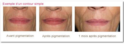 """Dermopigmentation ou """"maquillage permanent"""" : contour de la bouche"""
