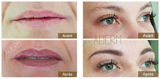 Aderm Annecy : dermopigmentation