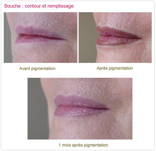 "Dermopigmentation ou ""maquillage permanent"" : bouche"