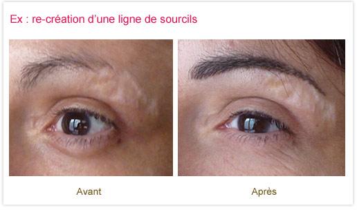 Dermopigmentation réparatrice : re-création d'une ligne de sourcils