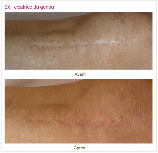 Dermopigmentation réparatrice : cicatrice du genou