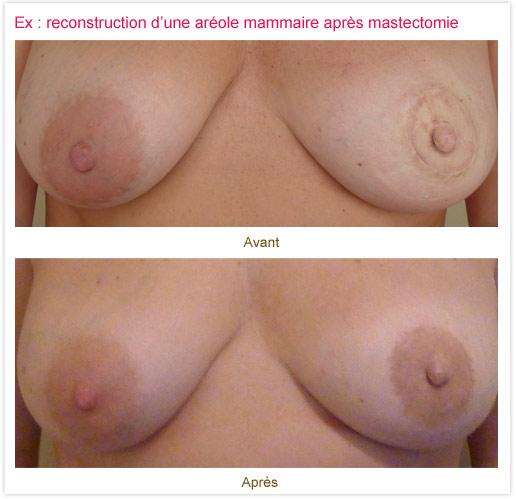 Dermopigmentation réparatrice : reconstruction aréole mammaire