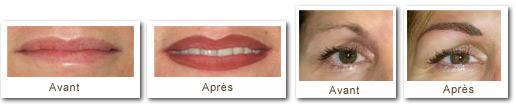 Exemples de dermopigmentation - ADERM