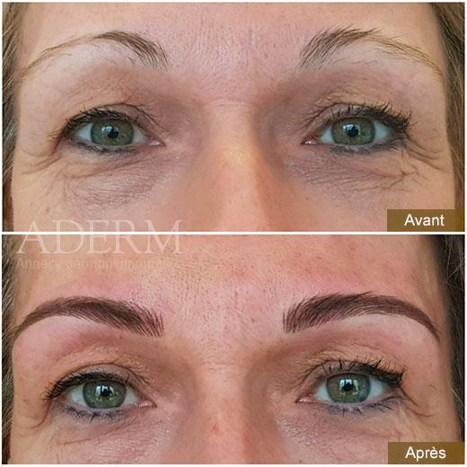 Aderm Annecy dermopigmentation - Restructuration des sourcils : avant/après