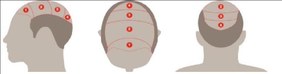 Tricopigmentation Annecy